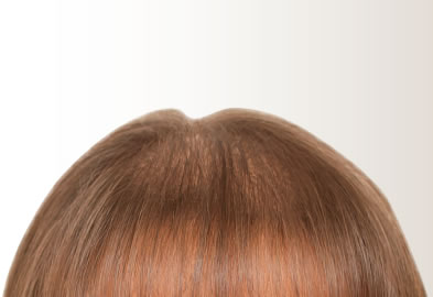 FACTORS THAT CAUSE WOMAN HAIR LOSS
