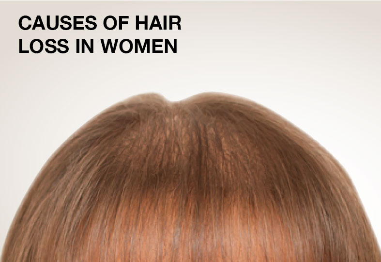 Nutrigrow - FACTORS THAT CAUSE WOMAN HAIR LOSS - photo#39